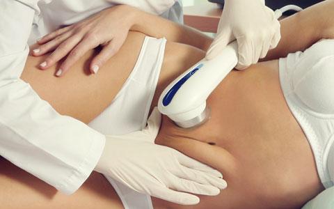 Tratamiento Cavitación Profesional
