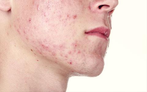 tratamiento para el acné y piel grasa