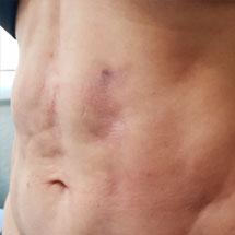 fibrosis post cirugía