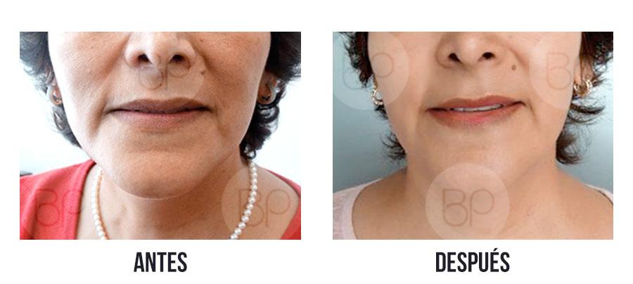 antes y después de lifting sin cirugía