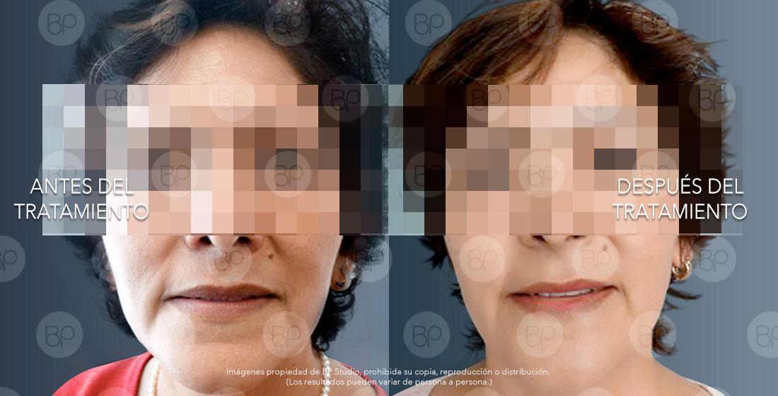 Tratamiento anti-arrugas