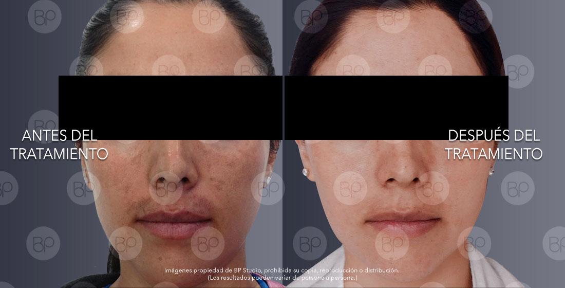 Tratamiento facial anti-manchas