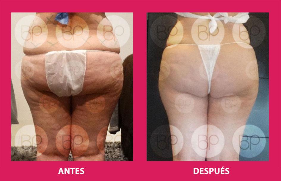 antes y después del tratamiento de drenaje linfático