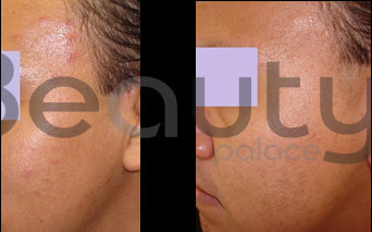 antes y después del tratamiento para piel grasa