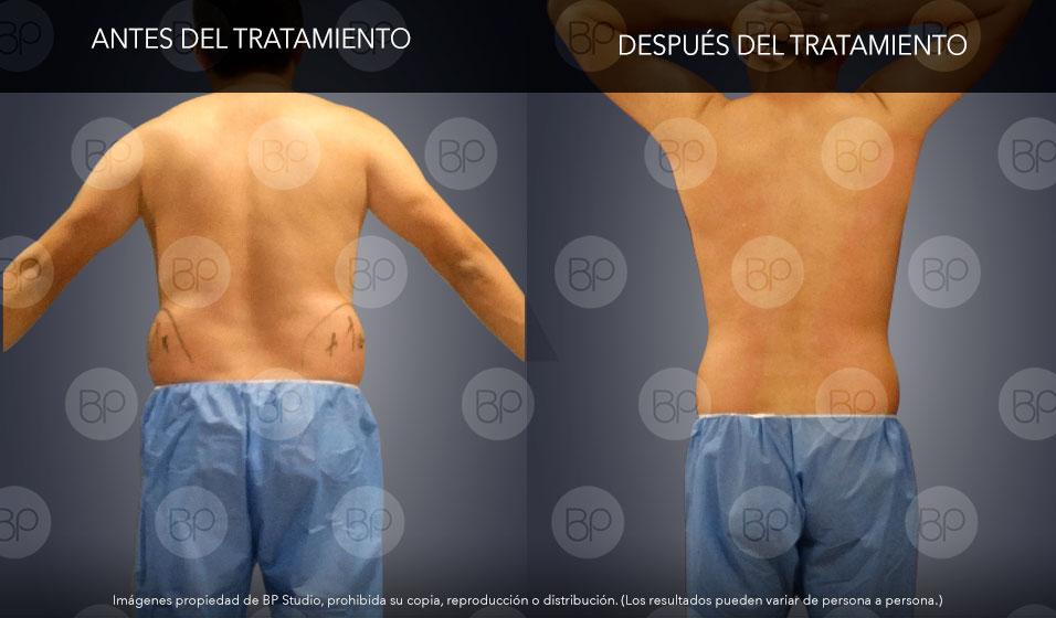 liposucción sin cirugia