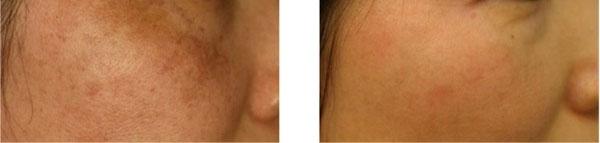antes y después del tratamiento para combatir las manchas de la piel