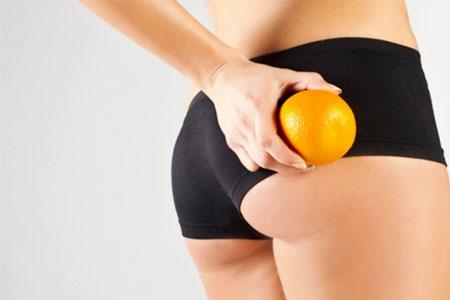 causas de la piel de naranja