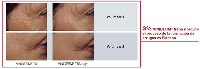 antes y después del tratamiento Kianty Viniferin de Beauty Palace